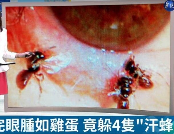 4 زنبور زیر پلک یک زن زندگی می کردند!