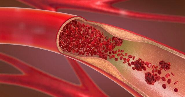 توسعه نانوذراتی که سلول های آلوده را از بین می برند